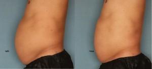 אולטרשייפ לפני ואחרי