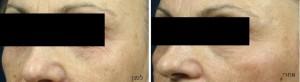לפני ואחרי טיפול טיפול מיצוק ומתיחה