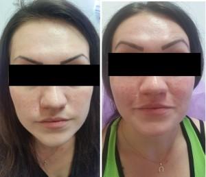 לפני ואחרי טיפול פילינג+טיפול אדמומיות ונימים